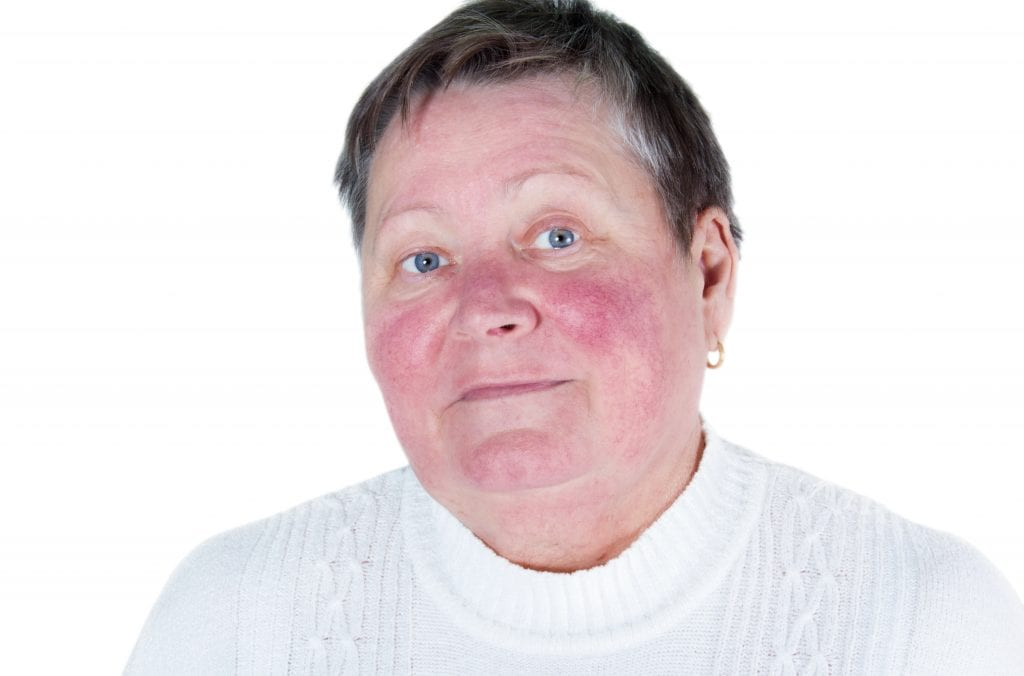 rosacea treatment charleston