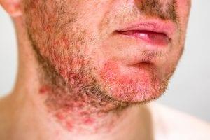 mt pleasant dermatology