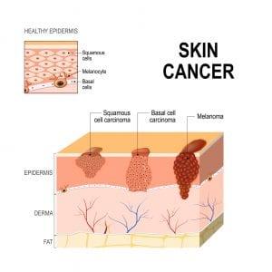 charleston dermatology