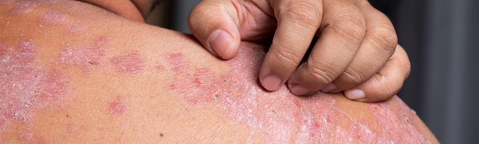 Psoriasis on skin being scratched.