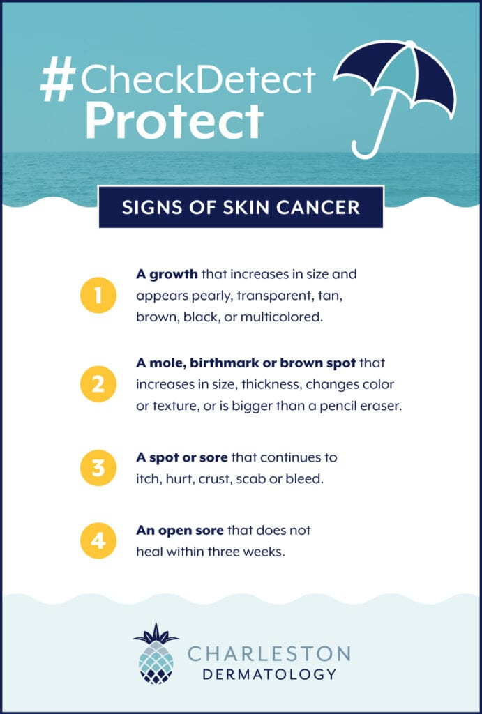 Signs of skin cancer: #CheckDetectProtect